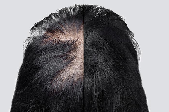 Hairfortin for hair growth