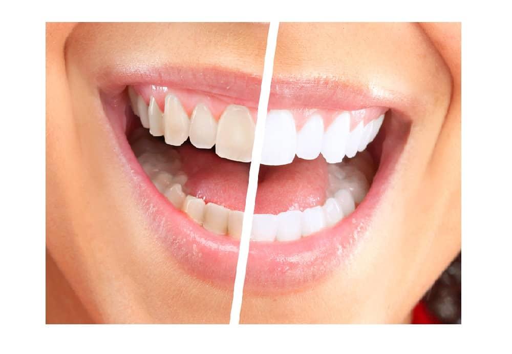 Dentitox Pro Results