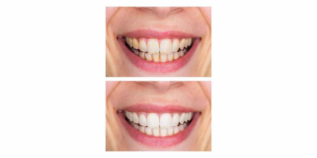 Dentivive Results